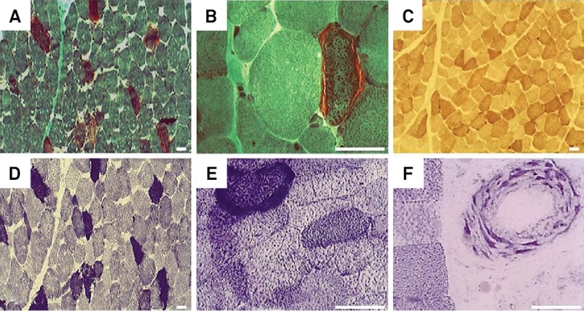 Classic features in the muscle biopsy of MELAS: ragged-red fibers (RRF) on modified Gomori trichrome stain (A, B); muscle fibers with normal activity of the cytochrome c oxidase (COX) (C); RRF on succinic dehydrogenase (SDH) stain (D, E); and SDH strongly reactive blood vessel (F). Bar = 50 µm.